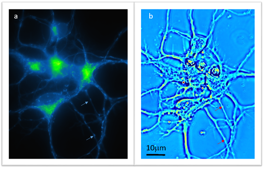 Identifying mitochondria using Mito-tracker® fluorescent labeling and SLIM imaging of in vitro hippocampal neurons: A) Fluorescent confocal image of hippocampal neurons showing mitochondrial concentrations in the soma and also traveling along the axons. B) Same view, using Spatial Light Interference Microscopy modulation to display potentially optical signature markers suitable for label-free organelle identification. Jorge Maldonado De-Jesus, Trainee
