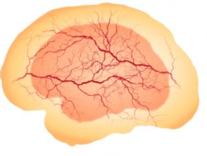 Vascularized brain organoid